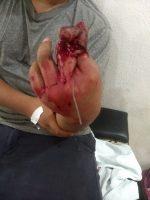 Menor de Edad Se Mutila Dedos con un Pulidor